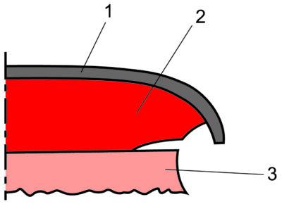 Подтравливание рисунка при травлении по металлорезисту: 1 — металлорезист; 2 — гальванически осажденная медь; 3 — медь фольги