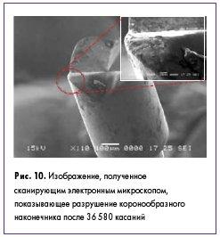Рис. 10. Изображение, полученное сканирующим электронным микроскопом, показывающее разрушение коронообразного наконечника после 36 580 касаний