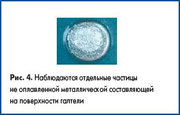 Наблюдаются отдельные частицы не оплавленной металлической составляющей на поверхности галтели